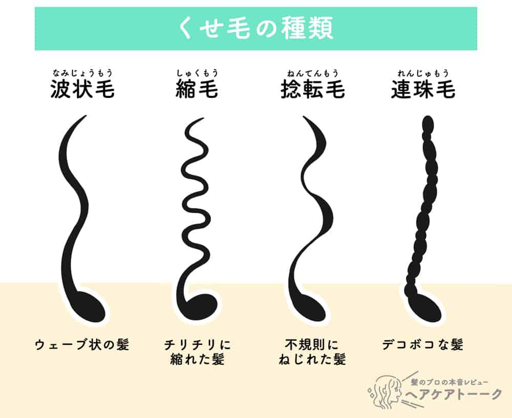 くせ毛の種類